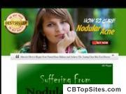 How To Cure Nodular Acne - Instant Best Seller Micro Niche!