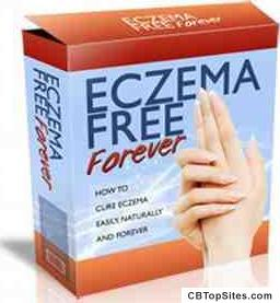 Eczema Free Forever - How to Cure Eczema Easily, Naturally and Forever