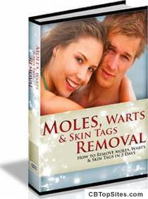 How To Safely & Permanently Remove Moles, Warts & Skin Tags